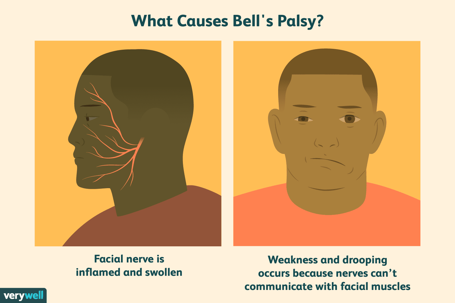 Bells Palsy Overview And More