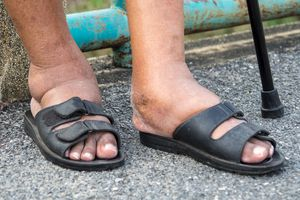 The feet of man with diabetes, dull and swollen.