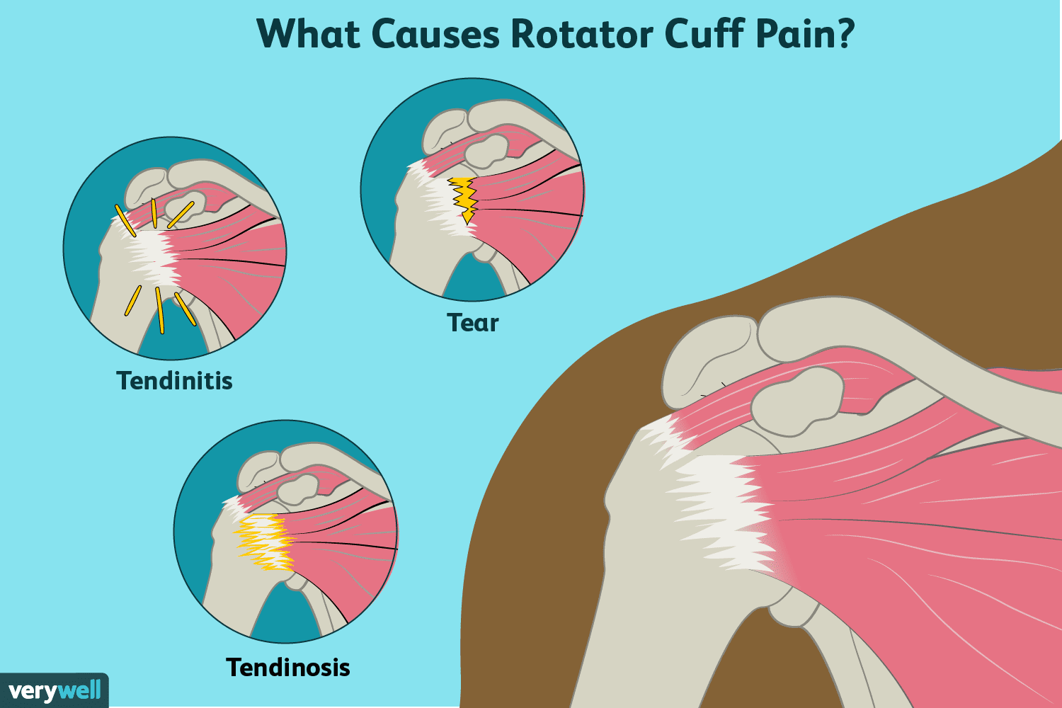 Causes And Treatment Of Rotator Cuff Pain