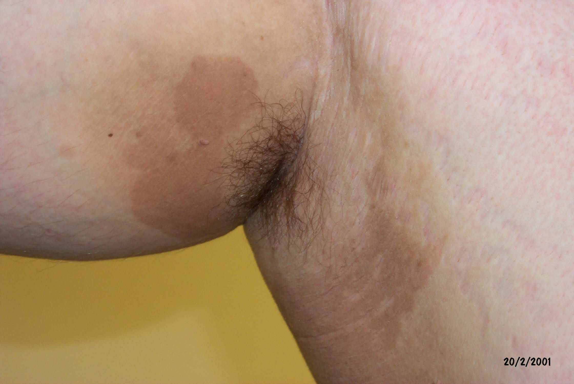 Common Rashes Found In The Armpits