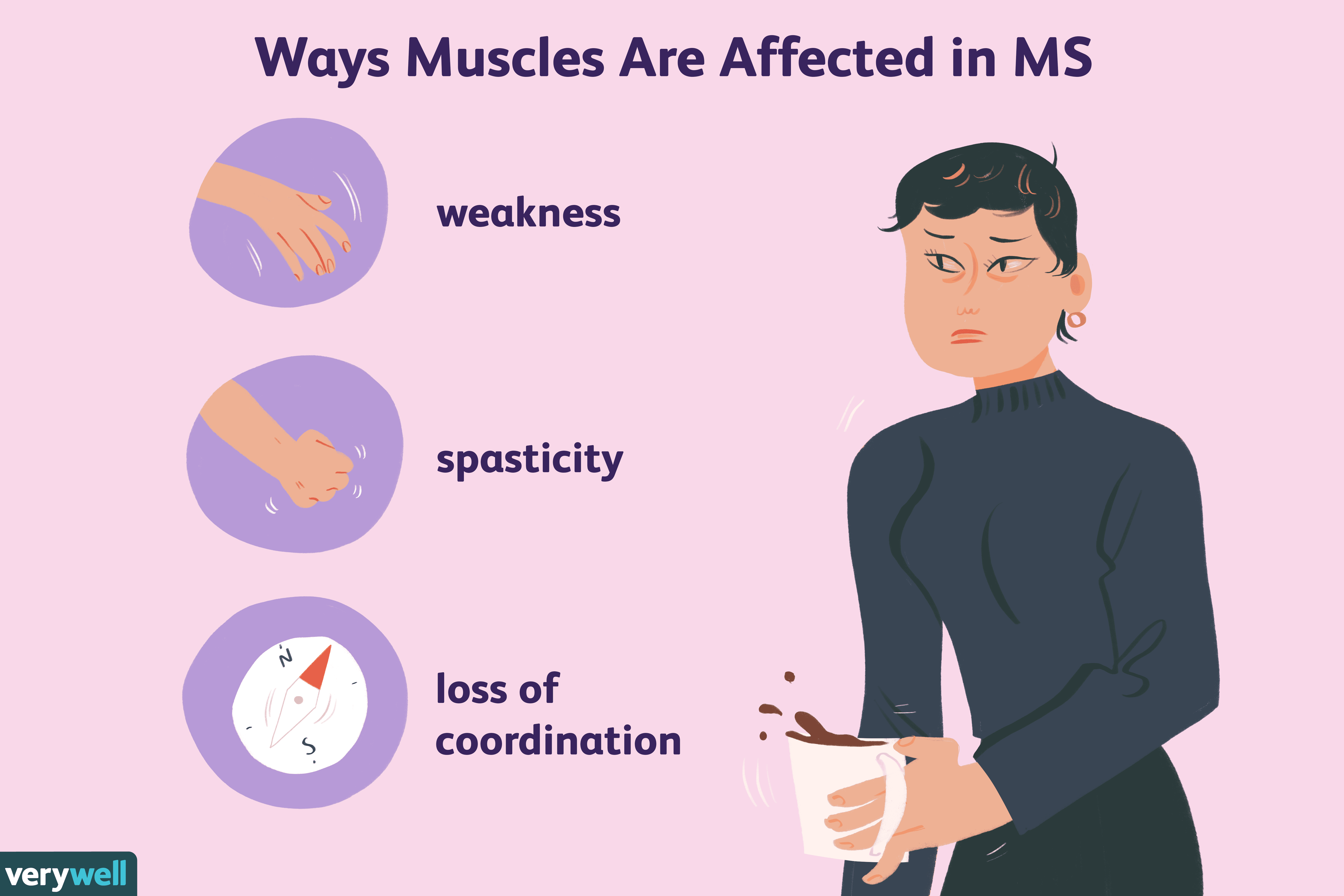 Ways Muscles Are Affected in MS