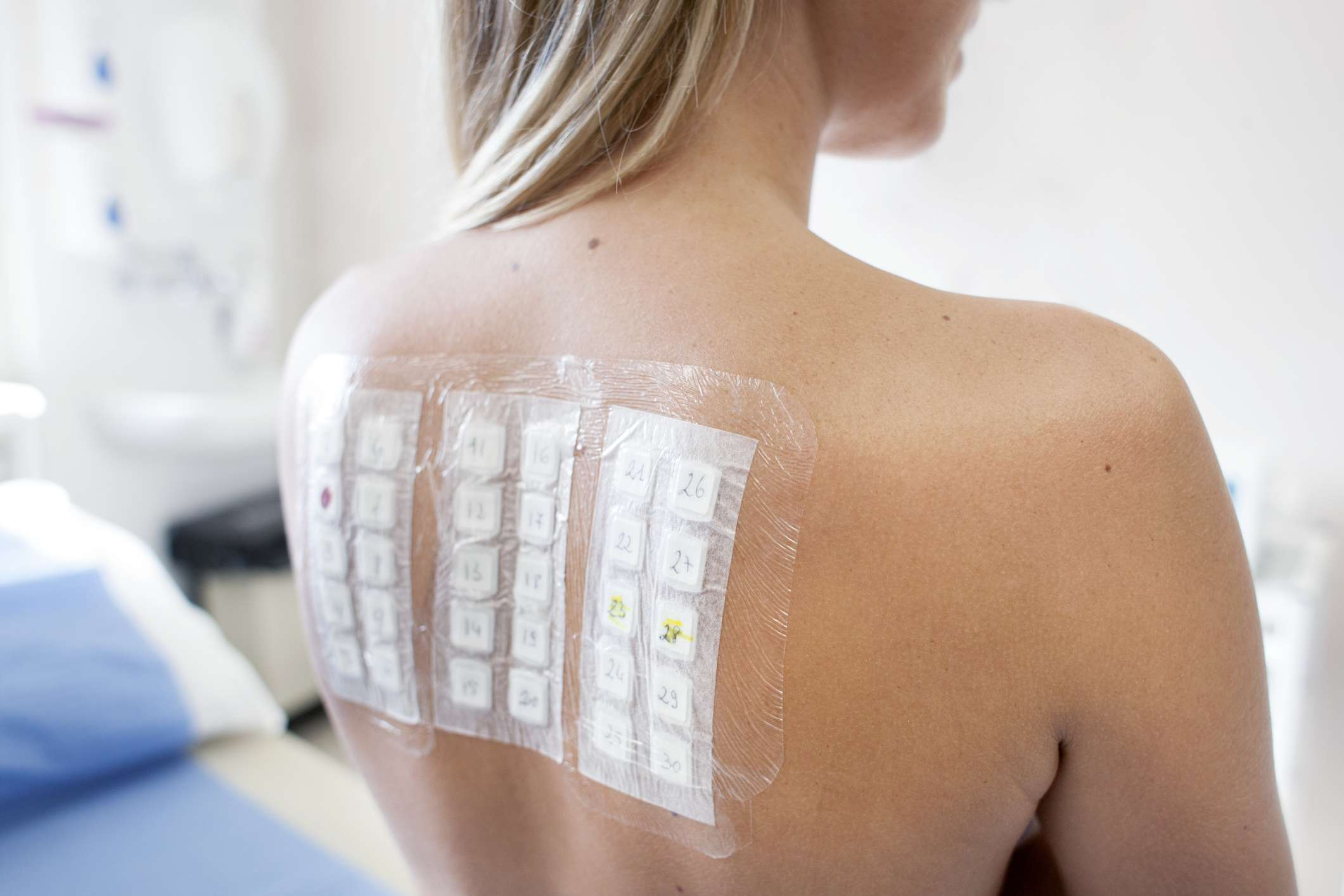 Patient undergoing a patch test in allergy clinic