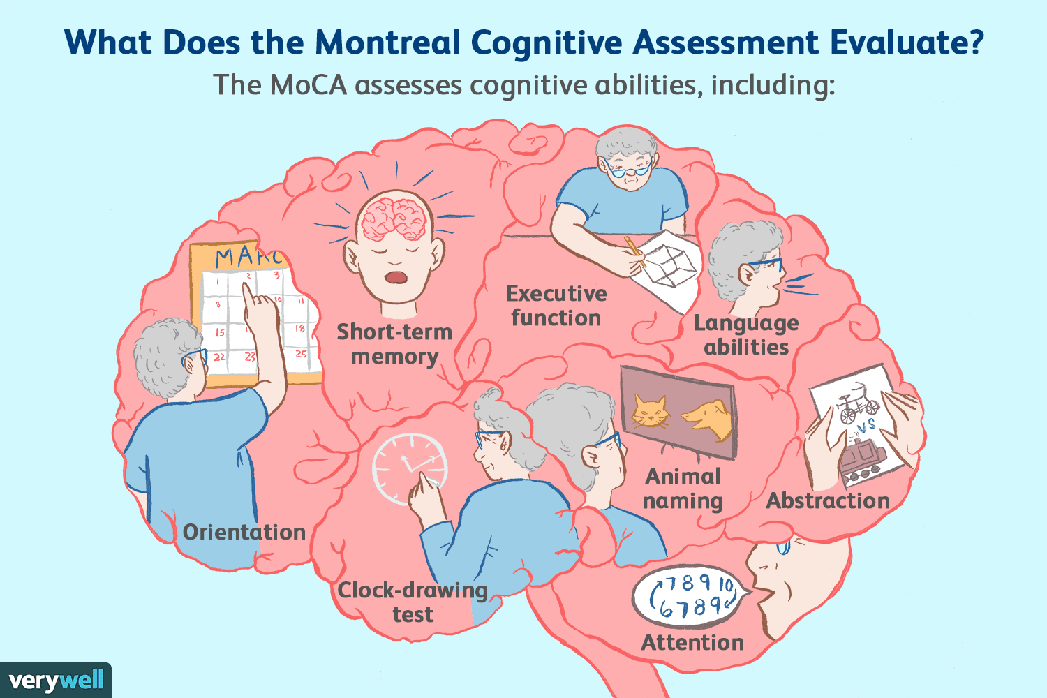 Montreal Cognitive Assessment (MoCA) Test for Dementia