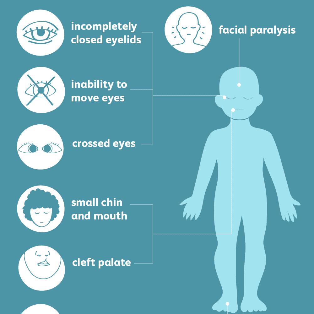 Moebius syndrome symptoms