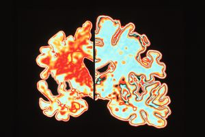 Two brain slices with and without Alzheimer's