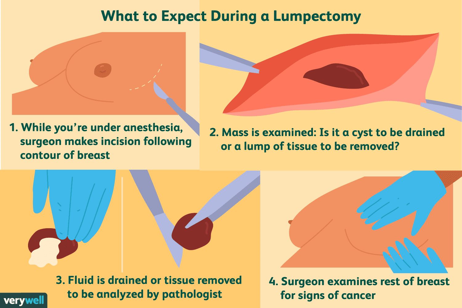 what to expect during a lumpectomy