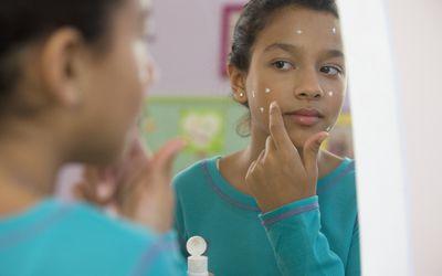a teenage girl putting on acne cream