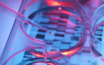 Pipetting sample into tray for genetic karyotyping testing