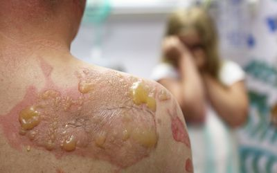 Chemotherapy Side Effects 7 Ways To Manage Dry Skin