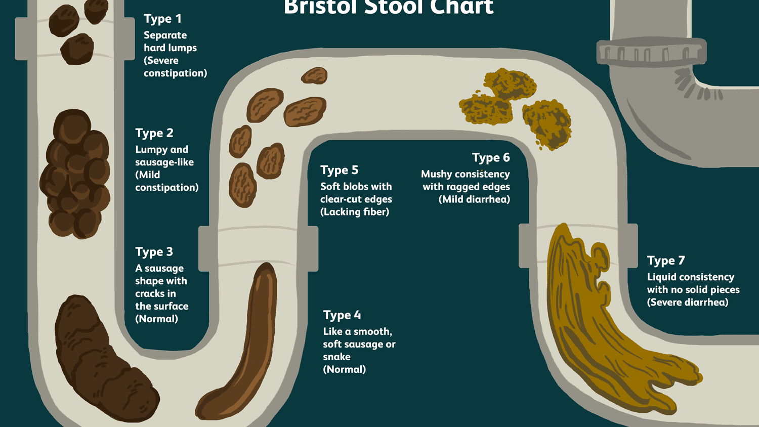 An Overview Of The Bristol Stool Chart
