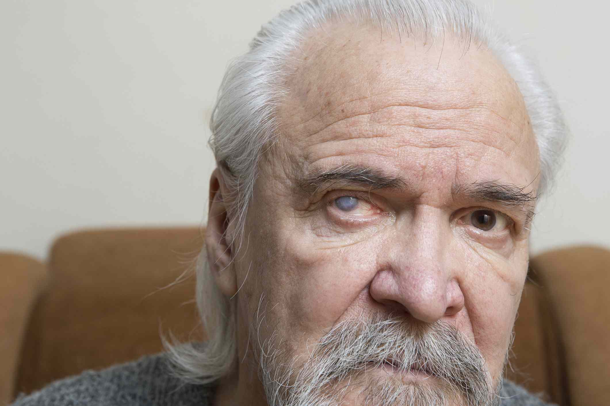 Grey haired man with a cataract in one eye.