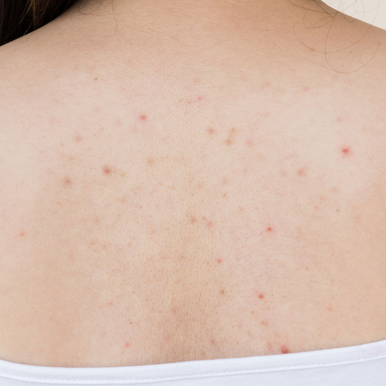 How To Treat Back Acne And Body Acne