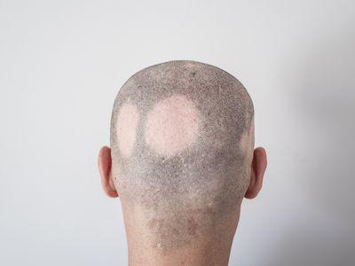 Man with alopecia areata
