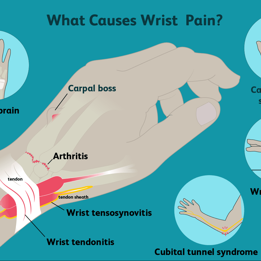 Wrist Pain: Causes, Treatment, and When to See a Doctor