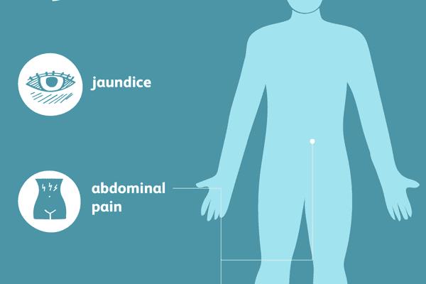 gallbladder disease symptoms