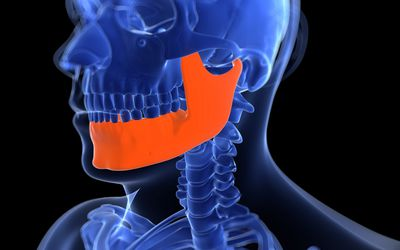 Rapid maxillary expansion is an orthodontic treatment useful in treating sleep apnea in children