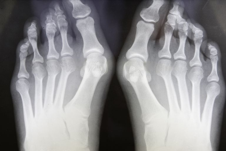 An x-ray of feet with bunions