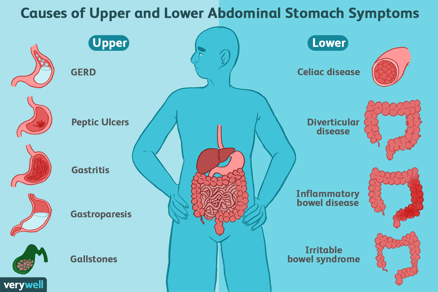 upper and lower abdominal stomach symptoms causes