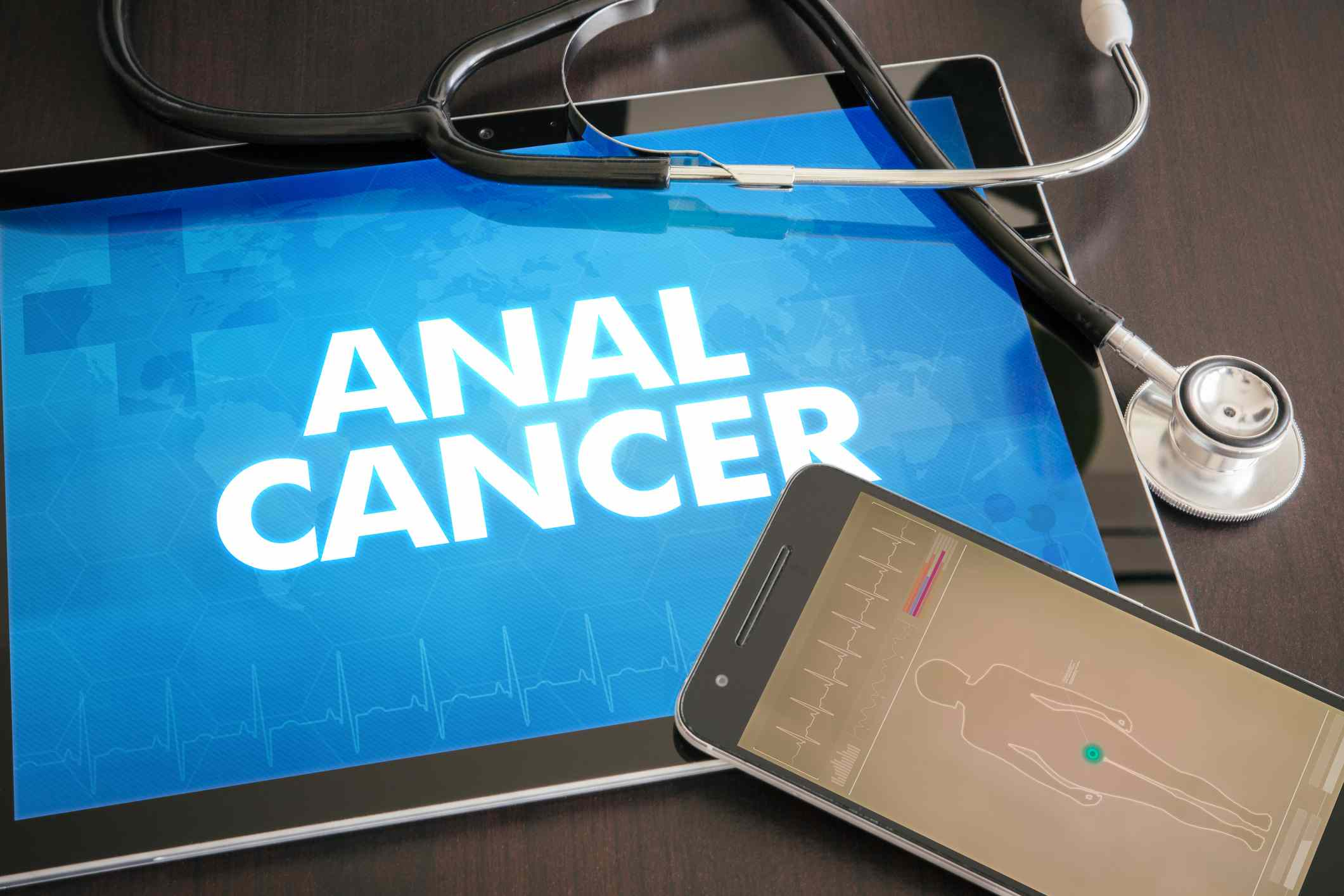 Anal Cancer typed on iPad