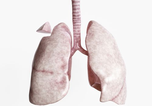 Rendering of lungs showing wedge resection