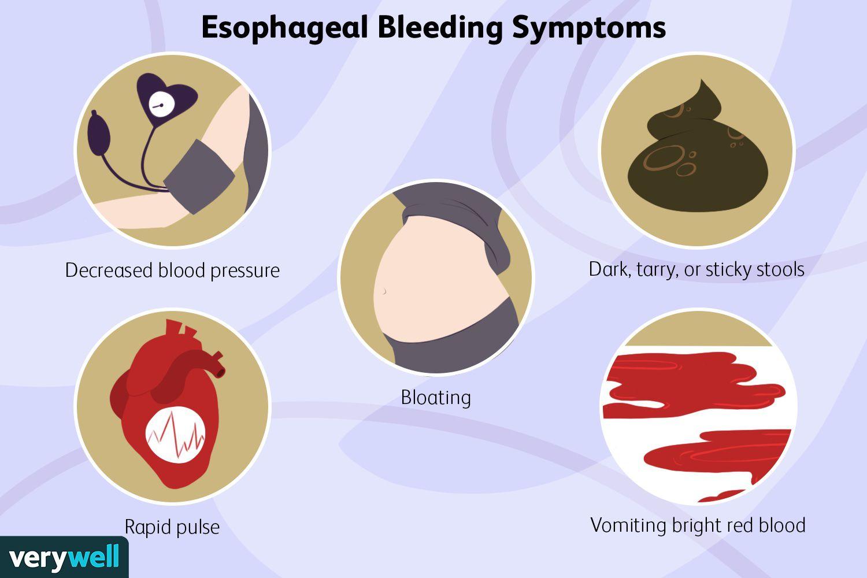 Esophageal Bleeding Symptoms