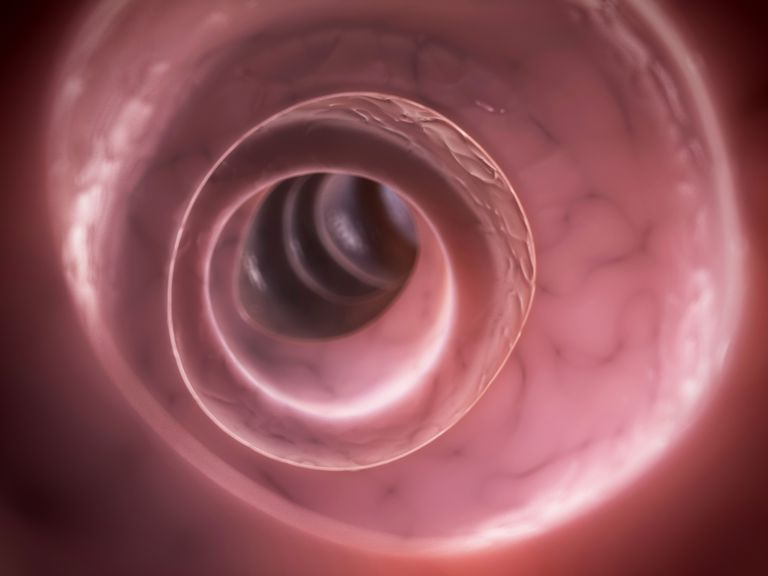 A virtual colonoscopy looks at the colon via CT images