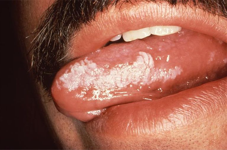 HIV and Oral Hairy Leukoplakia (OHL)