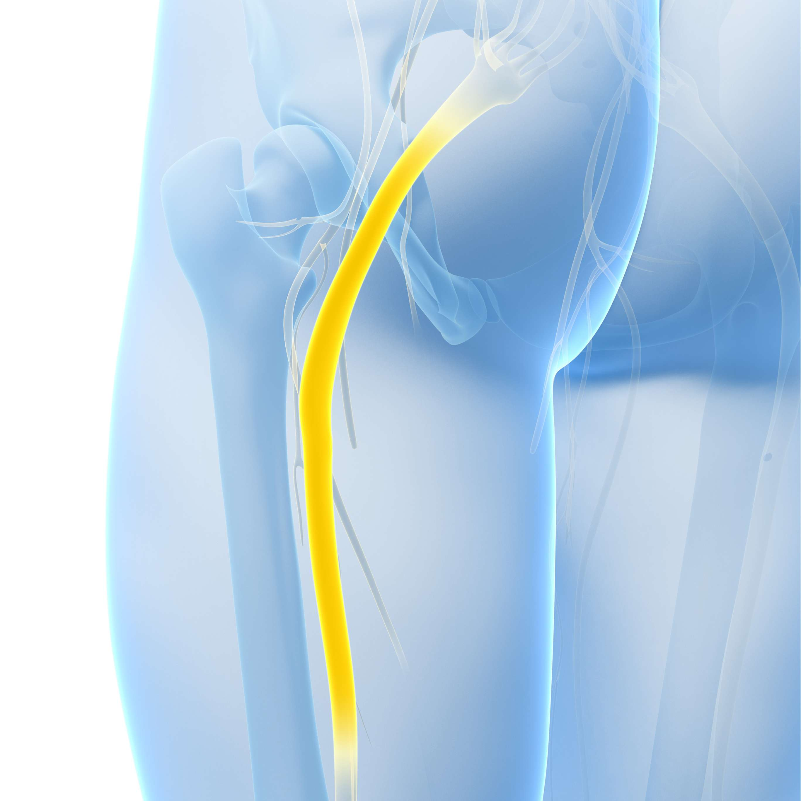 3 Exercises That May Irritate Your Sciatic Nerve