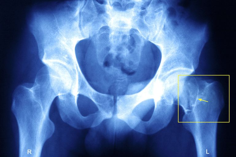 Fractured Hip, X-Ray