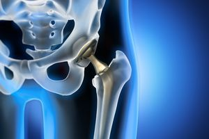 X-ray illustration of hip replacement