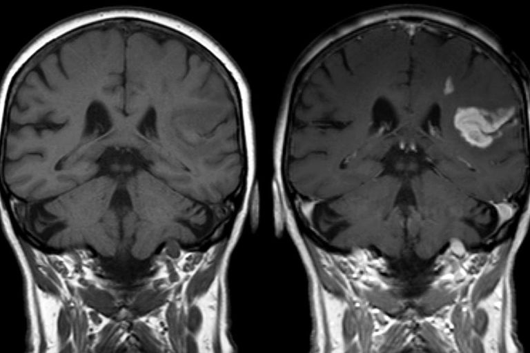 Defect of the blood-brain barrier after stroke shown in MRI. T1-weighted images, left image without right image with contrast medium administration.