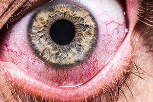 Red, irritated eye