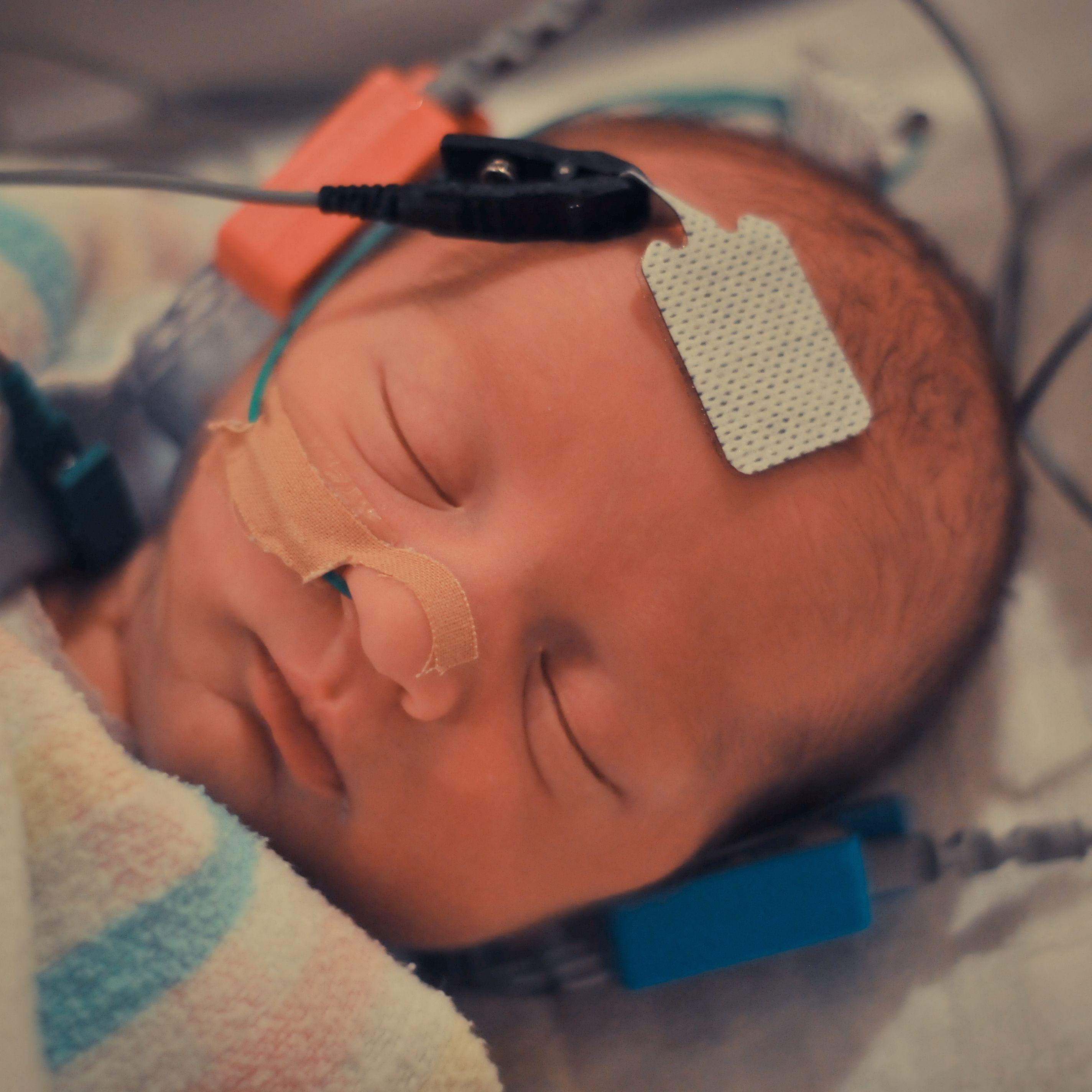 BAER (Brainstem Auditory Evoked Response) Hearing Test