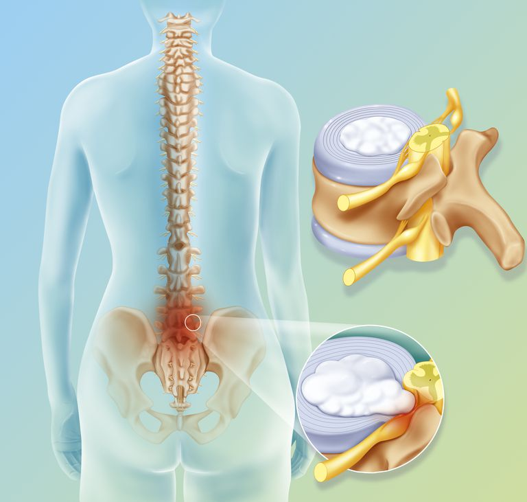 Peachy Types Of Disc Herniations Bulging Protruded Wiring Digital Resources Indicompassionincorg