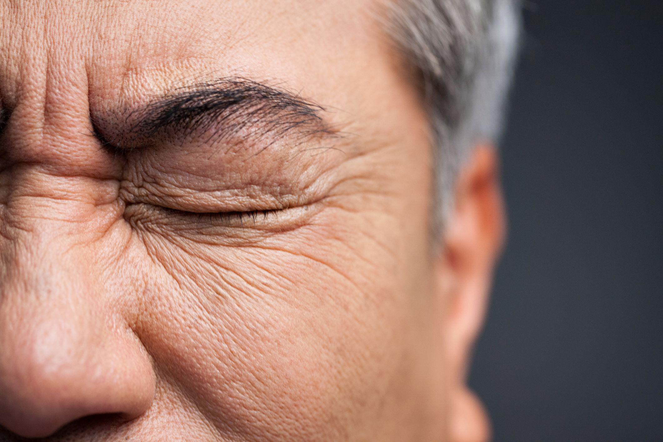 3 Ways to Treat Chronic and Stubborn Blepharitis