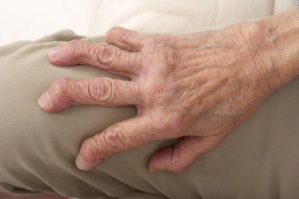 Arthritis mutilans