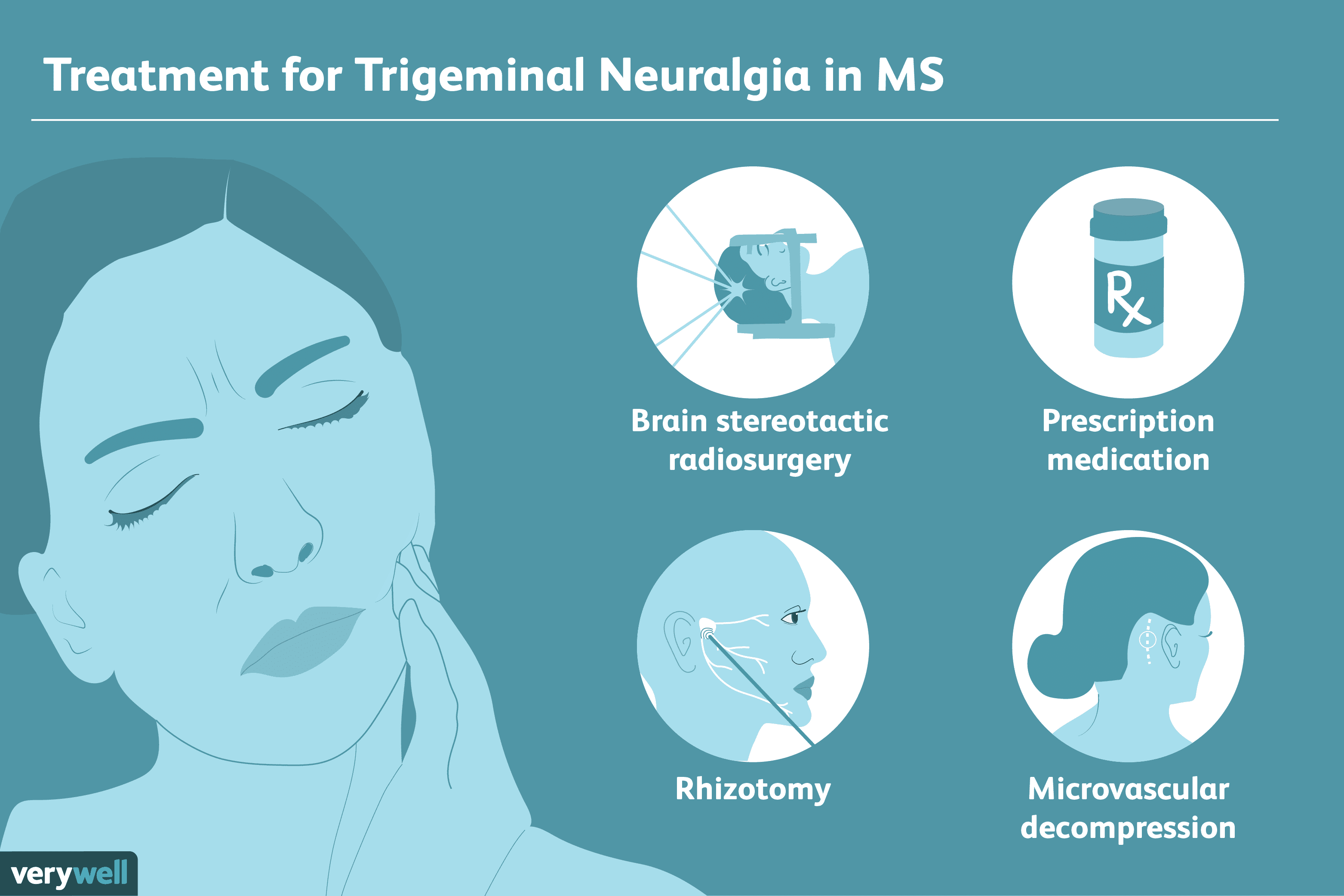 Trigeminal Neuralgia in MS: Symptoms, Diagnosis, Treatment