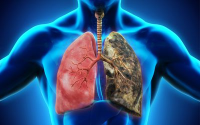 Healthy lung vs. smoker's lung