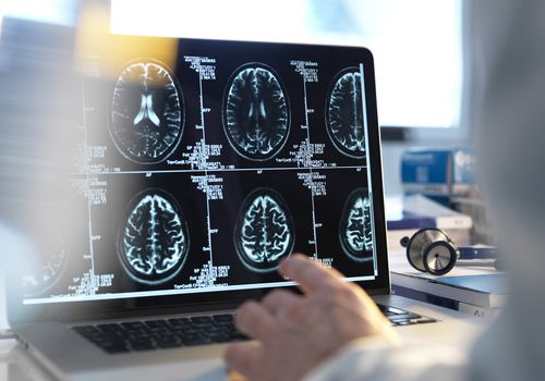 Doctor viewing a patients brain scans on a computer screen