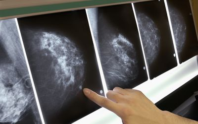Breast Fat Necrosis: Symptoms, Causes, Diagnosis, and Treatment