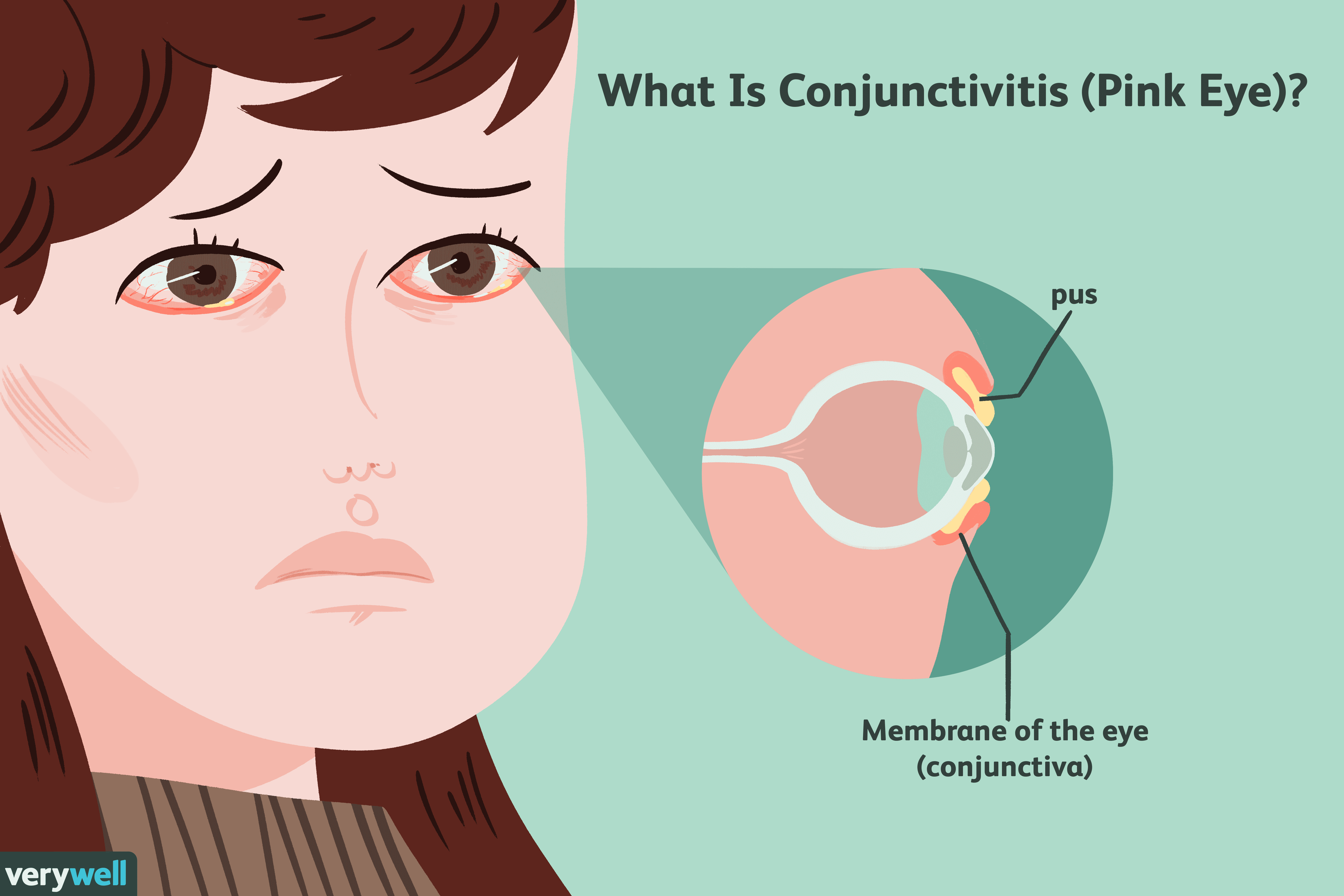 What Is Conjunctivitis (Pink Eye)?