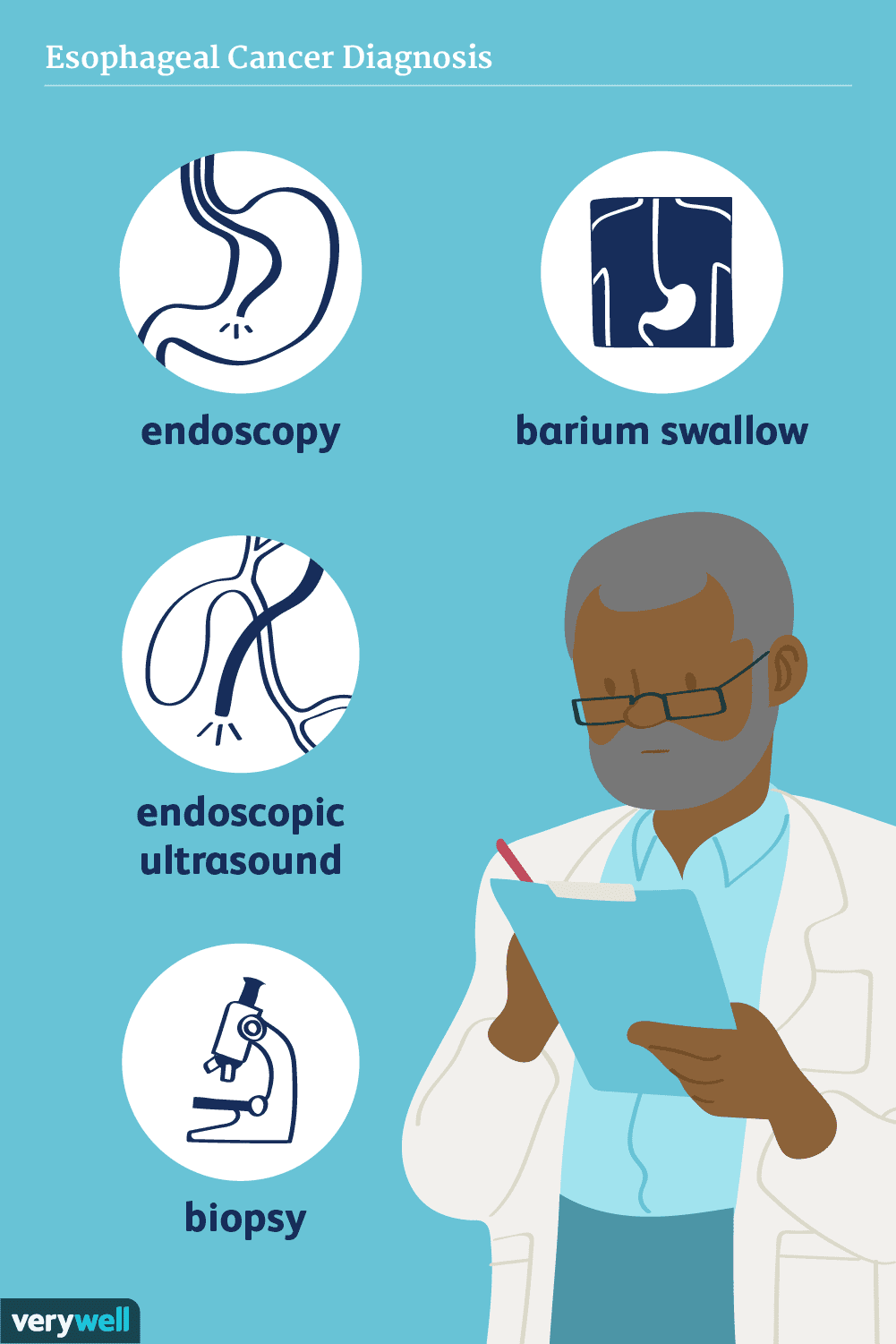 esophageal cancer diagnosis