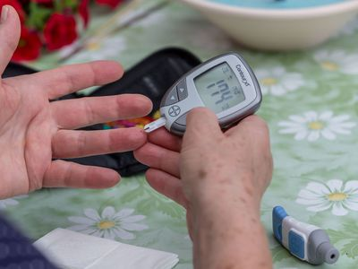 A blood glucose measurement is being performed on July 28, 2020 in Pfullendorf, Germany.