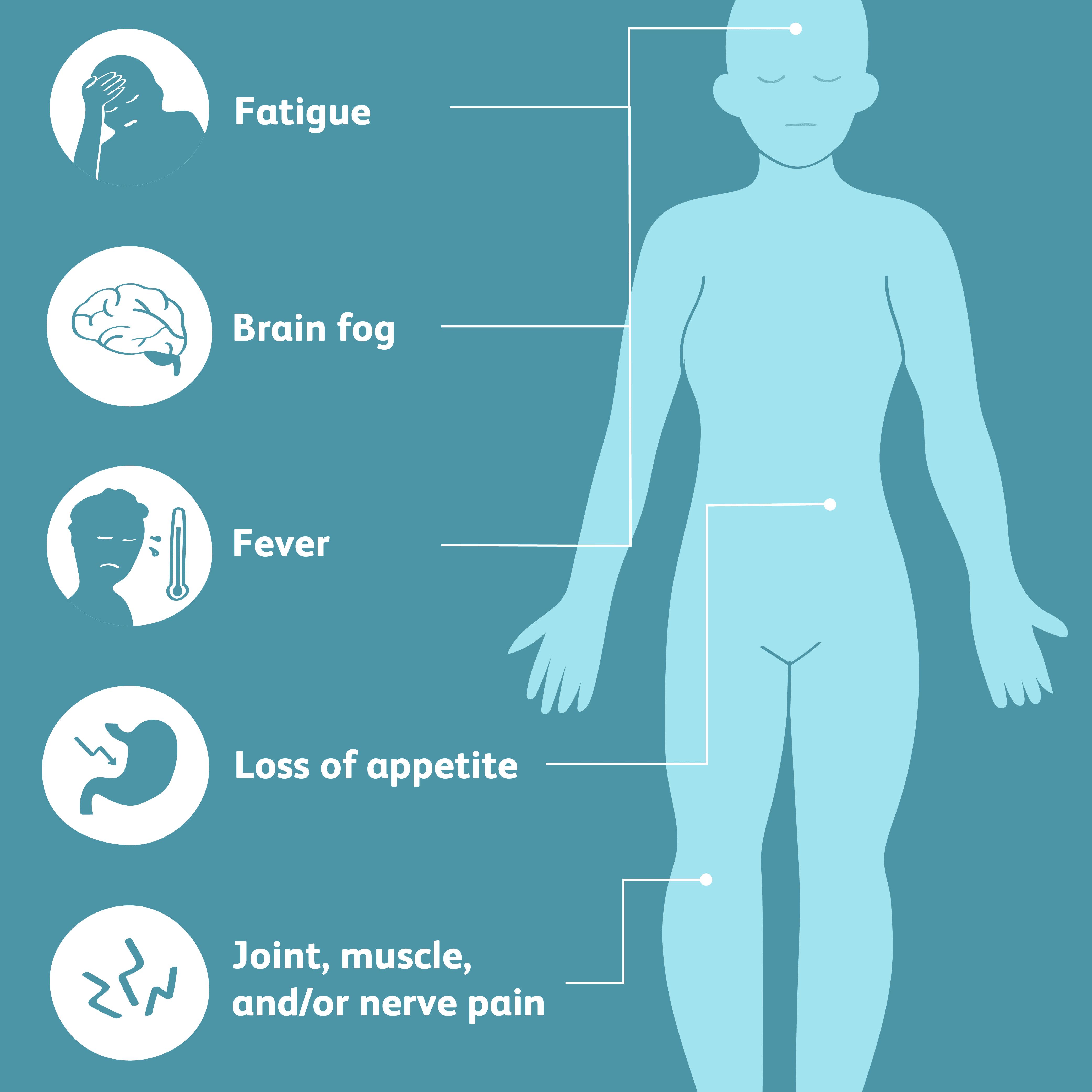 secondary sjogren's syndrome