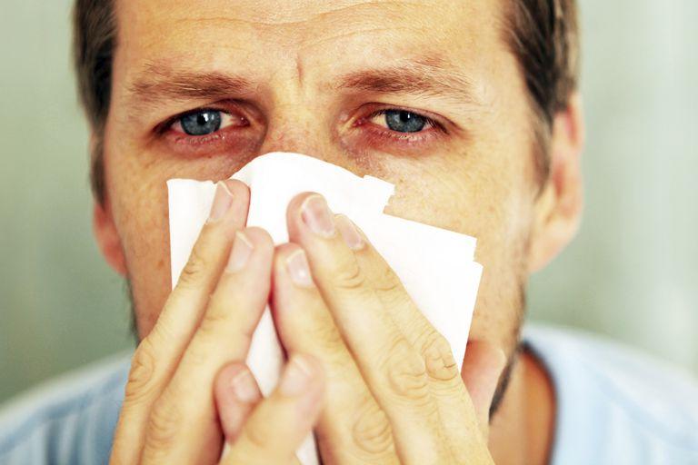 Eye Allergies - Causes and Symptoms