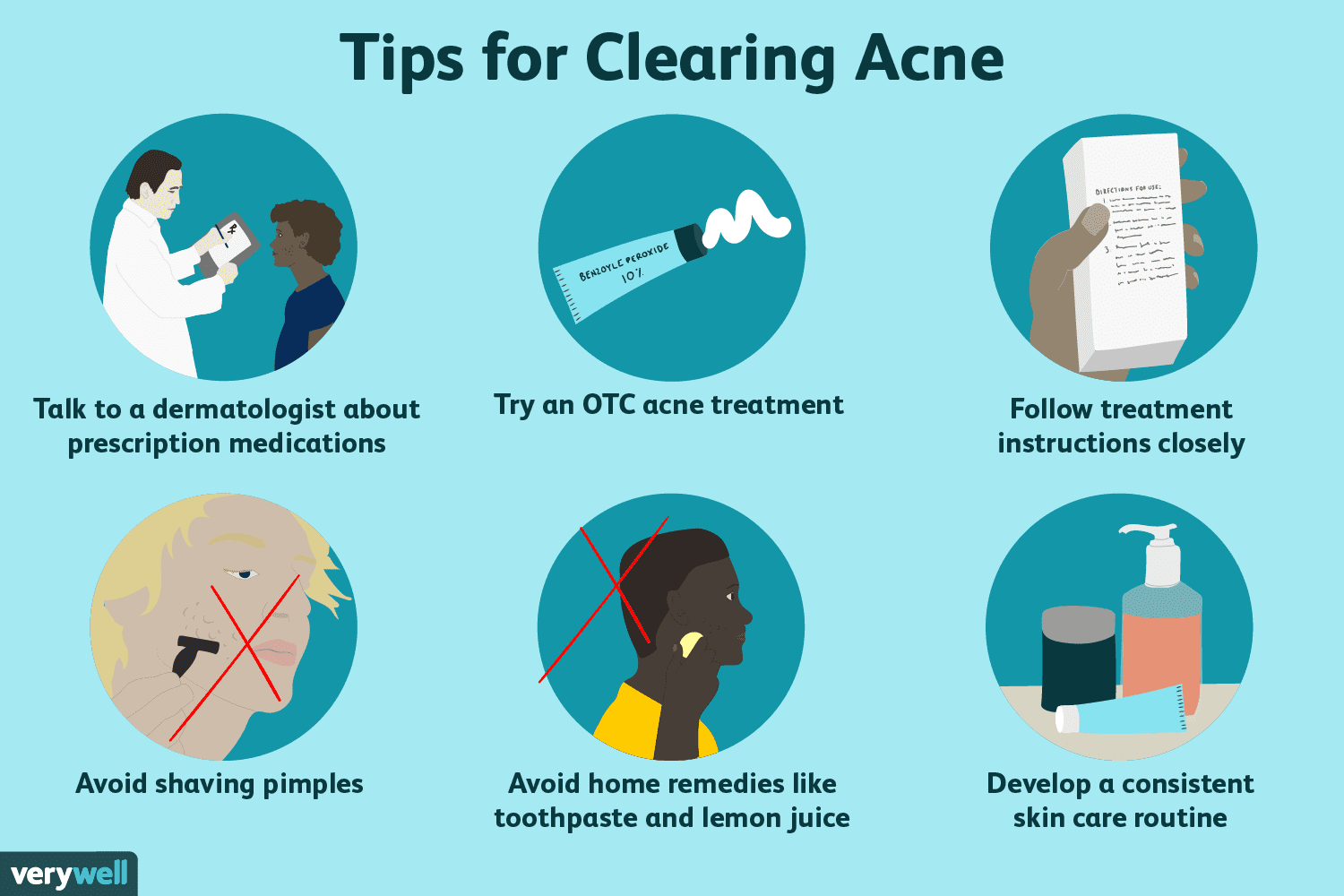 8 Smart Ways to Treat Teen Acne in Boys