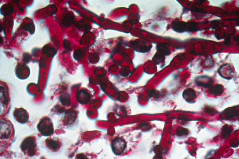 Microscopic image of thrush infection of candidiasis