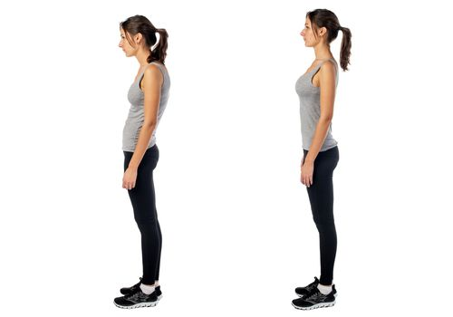 Swayback posture compared to ideal posture.