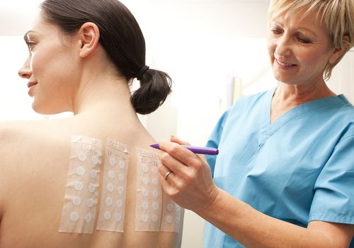 woman having an Allergy patch test