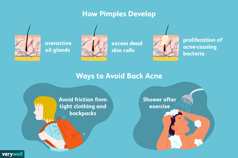 how and why pimples develop and how to avoid back acne